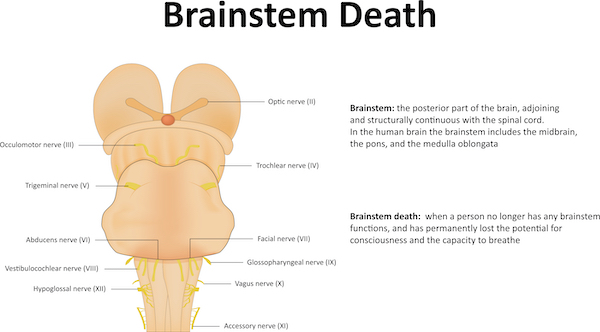 Sketch of the brain stem anatomy and description of brain stem death