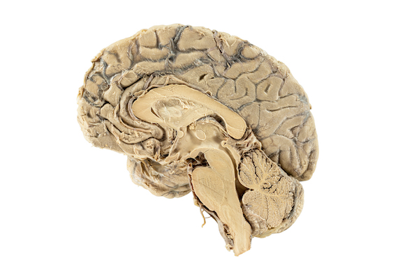 Longitudinal section of the human brain showing in the elongated lower region the brain stem (behind the cerebellum) continuing into the spinal cord