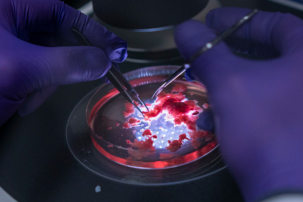 Close up of a brain tumour being dissected in a petri dish lit from beneath