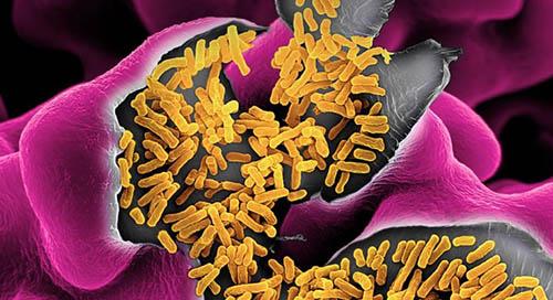 Your gut microbiota and you grow old together