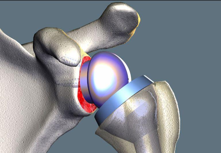 arthritis-ashley-surgery