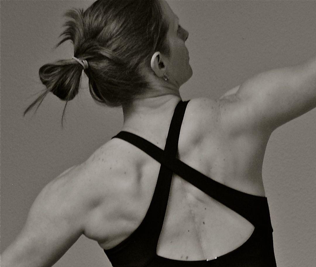 Brenda Carey Scoliosis Spinal Fusion Yoga Teacher