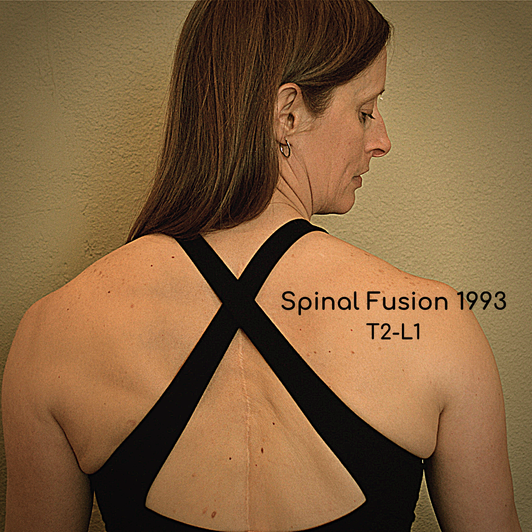 Brenda Carey Scoliosis Yoga Teacher with Spinal Fusion from T2-L1