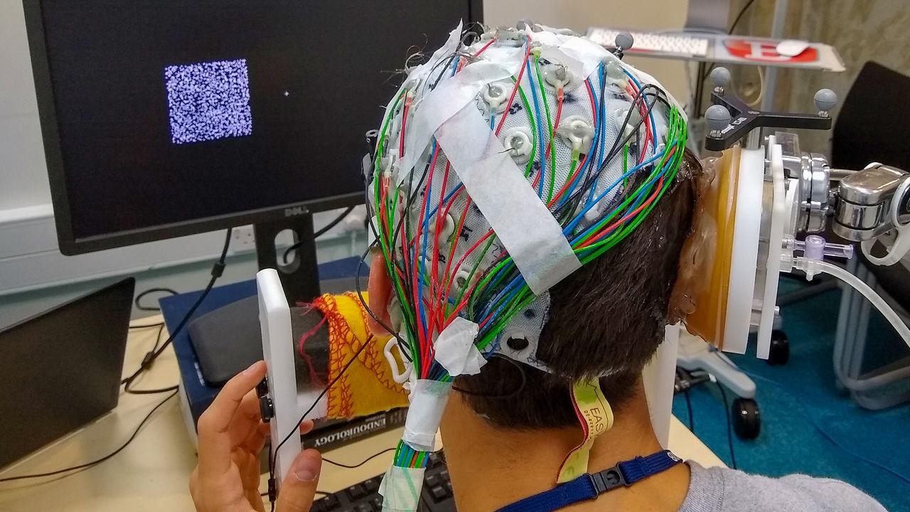 Ultrasound on brain