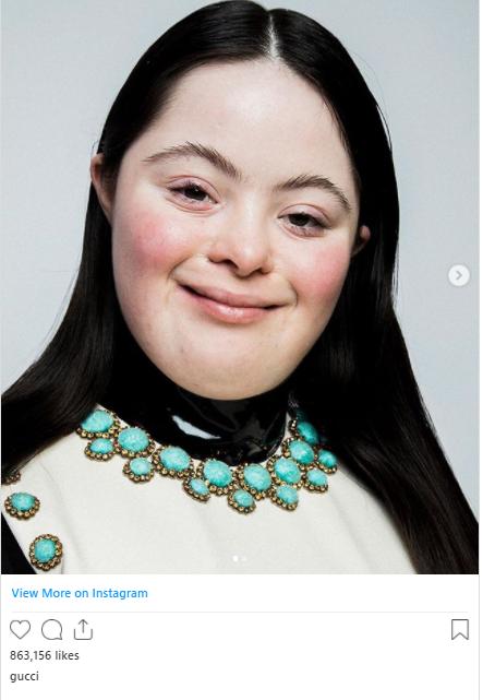 Ellie Goldstein model for Gucci