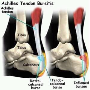 Suffering from heel pain