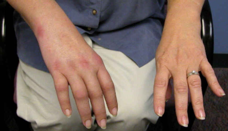Patient with Complex Regional Pain Syndrome CRPS