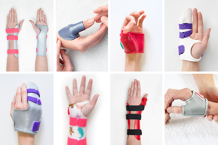 Melbourne Hand Rehab provides expert advice, manufacture and fitting of hand braces and splints