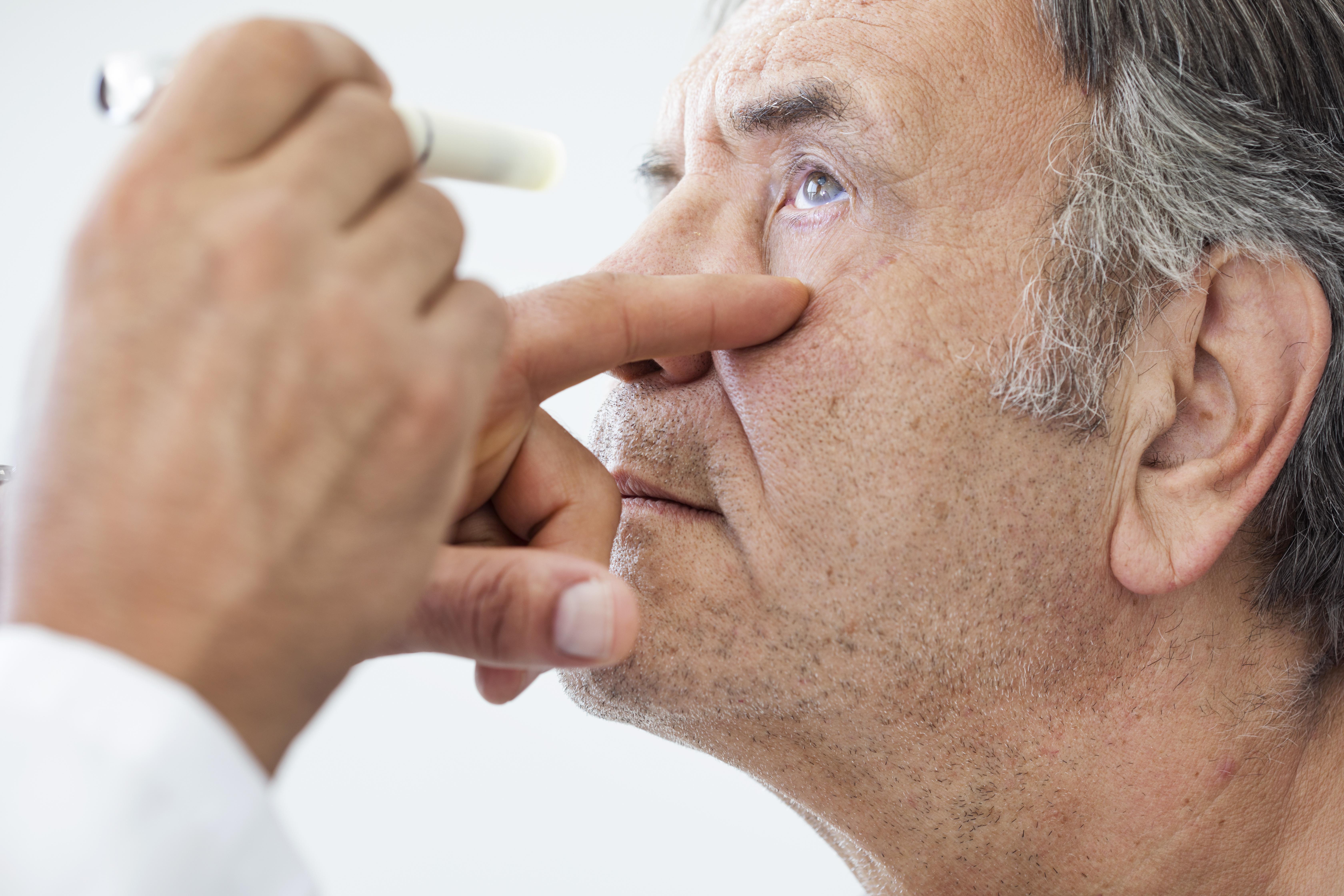 Thryoid eye disease