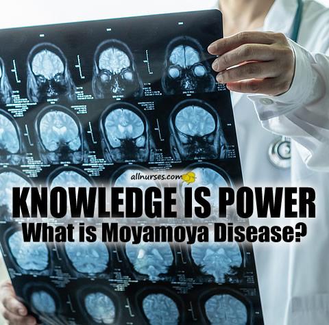 What is Moyamoya Disease?