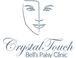 Crystal Touch Bell's Palsy Clinic