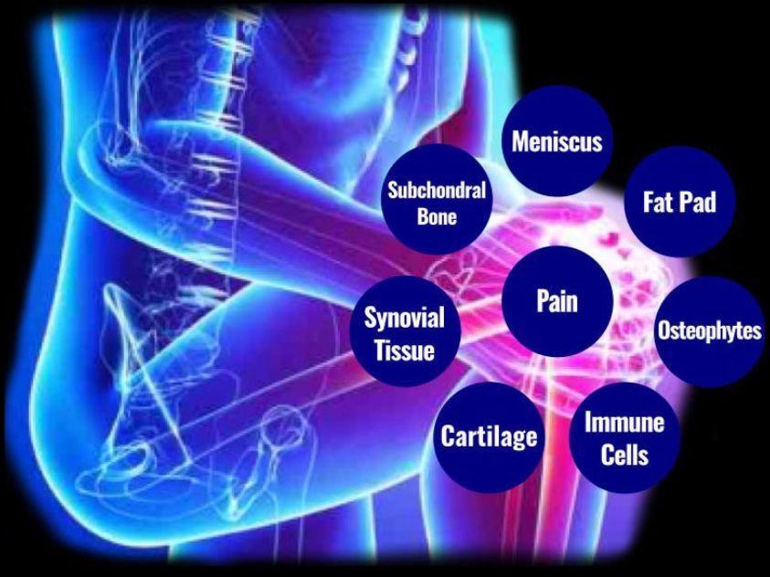molecular sustems architecture of knee oa
