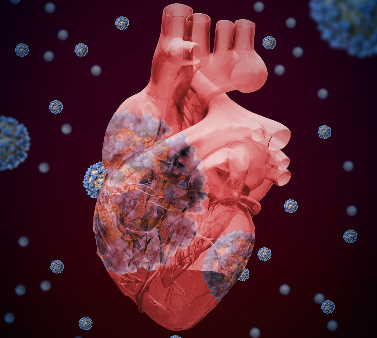 53b5162b 8a27 4618 8e93 67802c994df9 - ¿Cómo afecta al corazón el COVID-19?