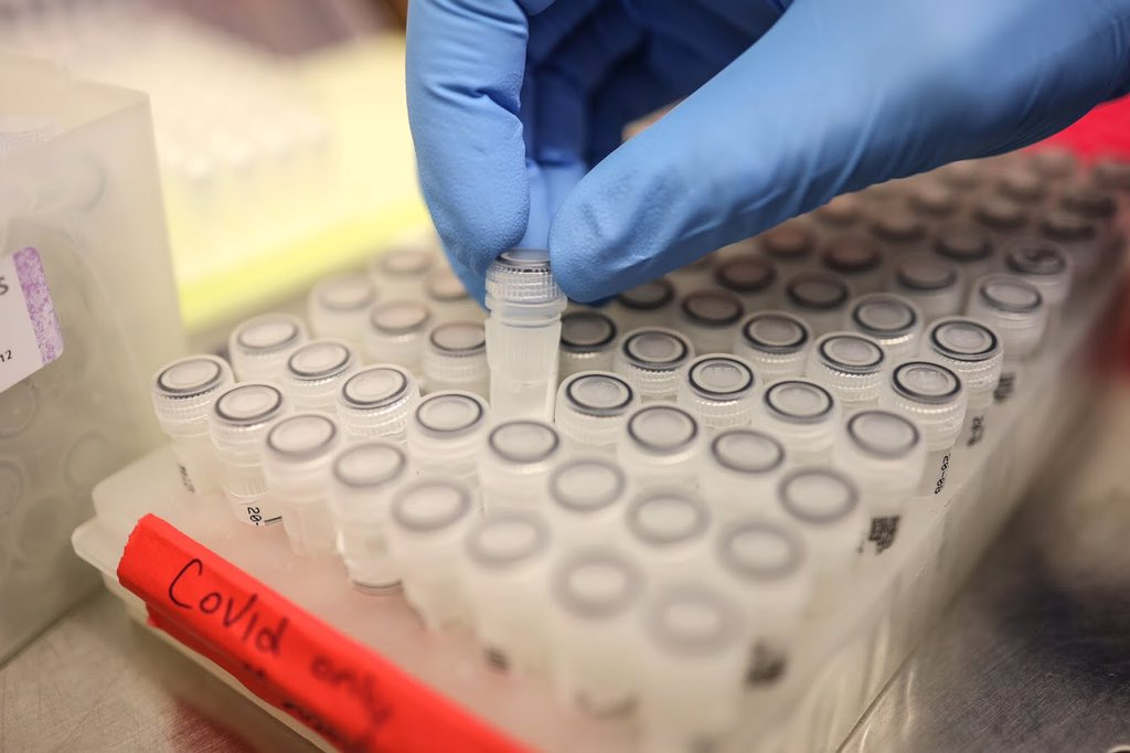 Alberta researchers are developing new rapid test to track coronavirus variants across the province. (Courtesy of Alberta Health Services)