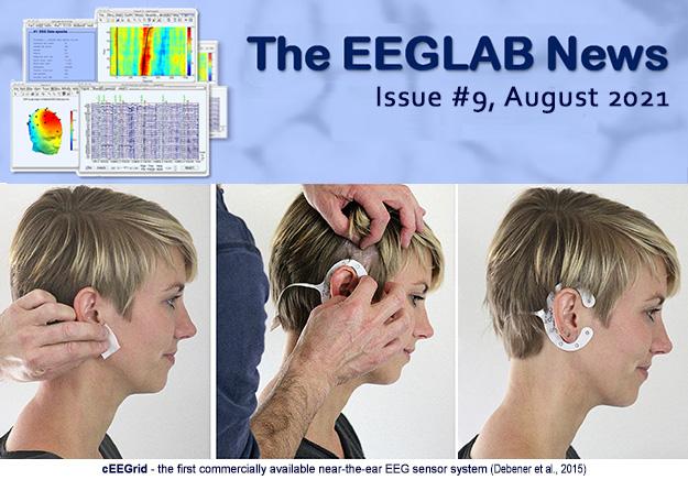 cEEGrid - the first commercially available near-the-ear EEG sensor system (Debener et al., 2015)