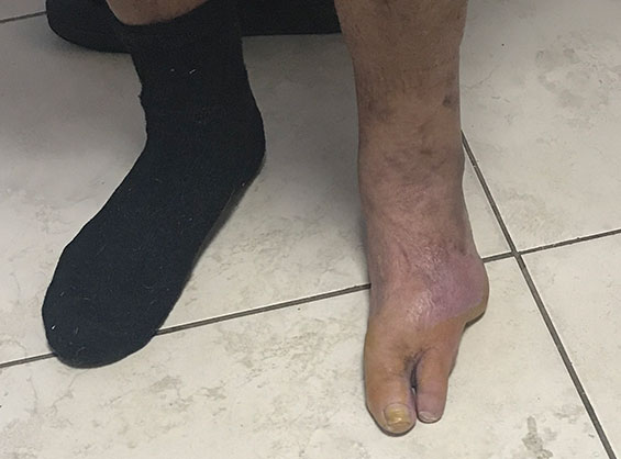COVID-19 and the Diabetic Foot in the Region
