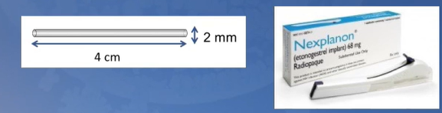 graphic displaying the size of an implant