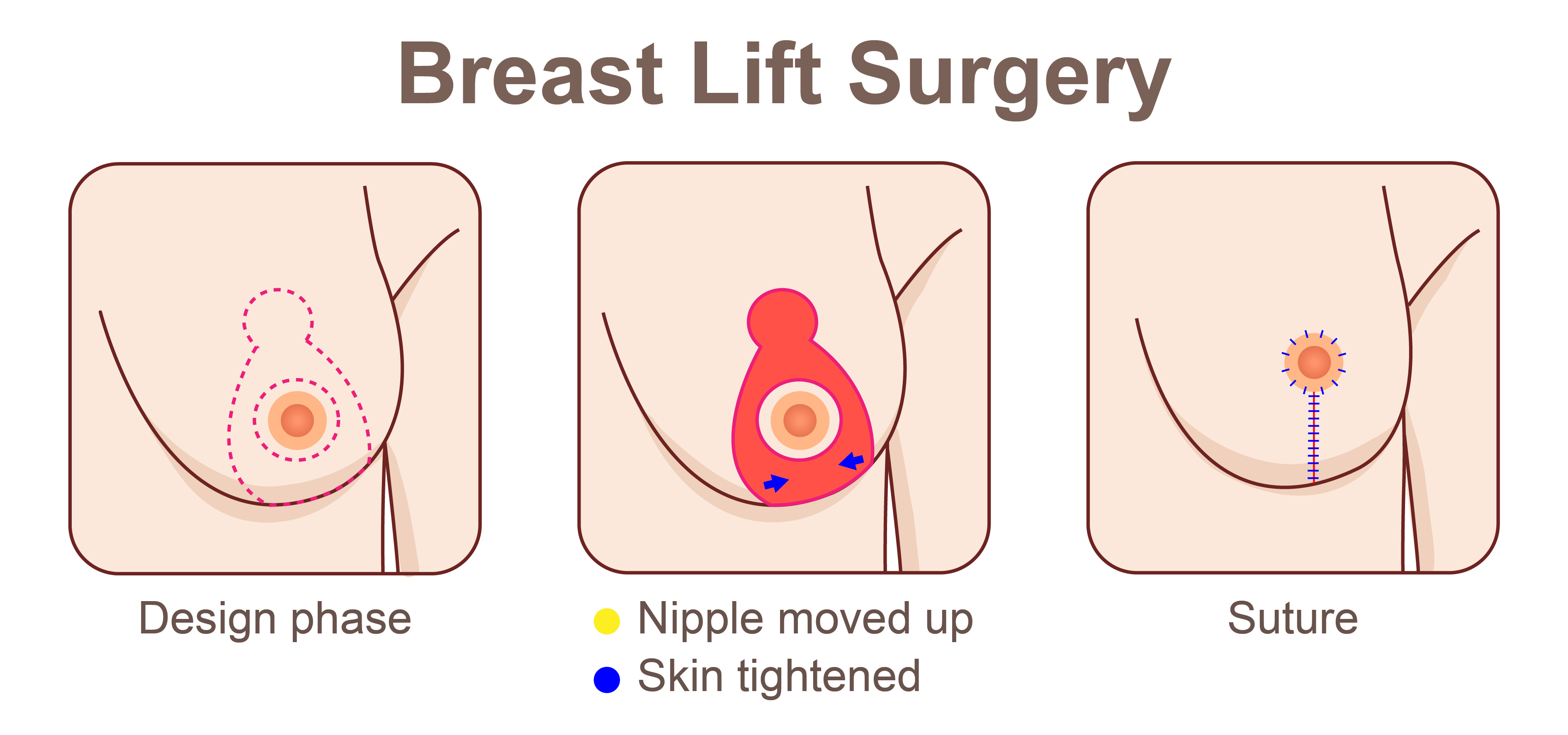 breast lifting treatment in hyderabad, breast tightening treatment in hyderabad