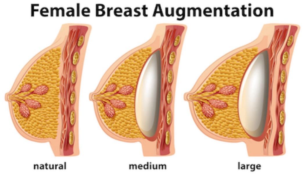 breast reduction surgery in karimnagar