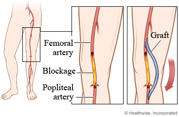 Femoral popliteal bypass surgery hyderabad