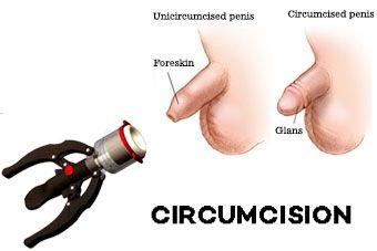 stapler circumcision surgery cost in Tummalur