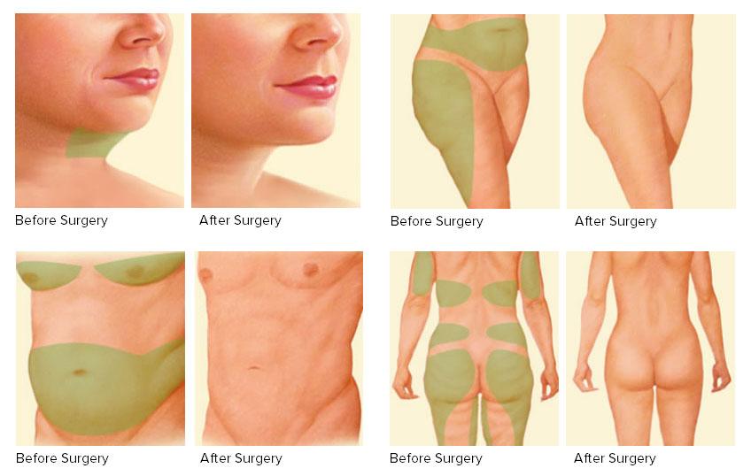liposuction treatment cost in Saidabad