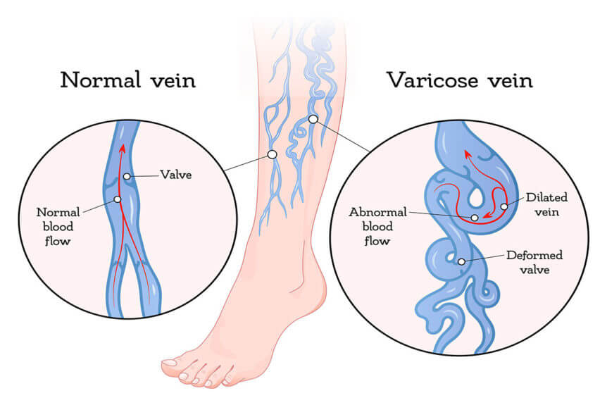 varicose veins surgery cost in Chirala