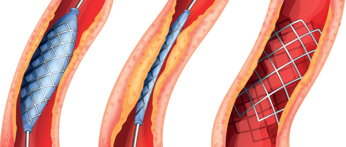 Iliac Artery Stent treatment hyderabad