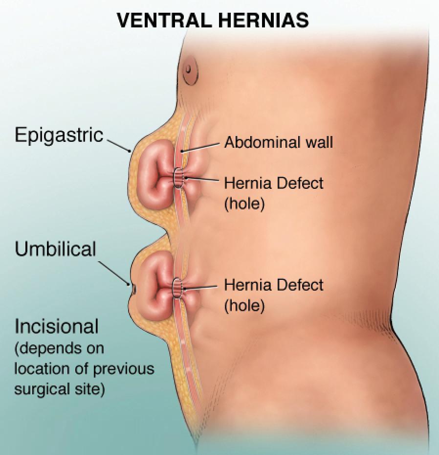 hernia surgery cost in Kondapur