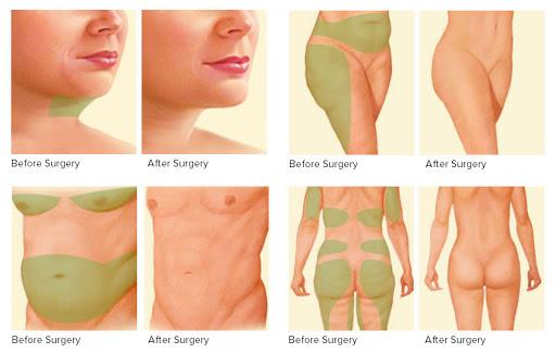 gynecomastia surgery cost near me
