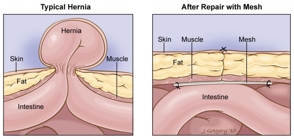 hernia surgery cost in gachibowli