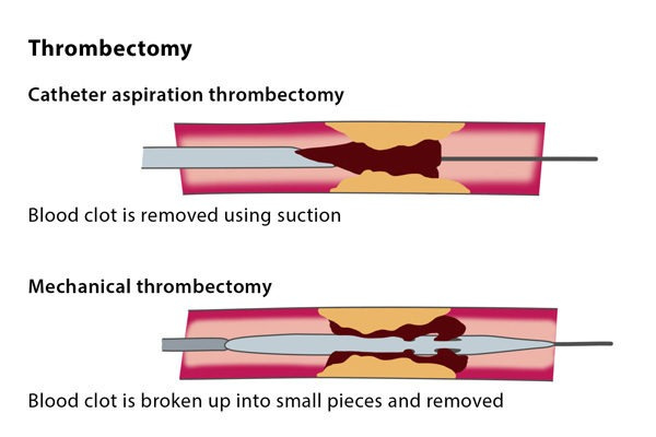 Arterial Thromboembolectomy treatment in hyderabad