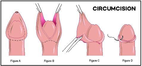 open circumcision surgery in Tummalur