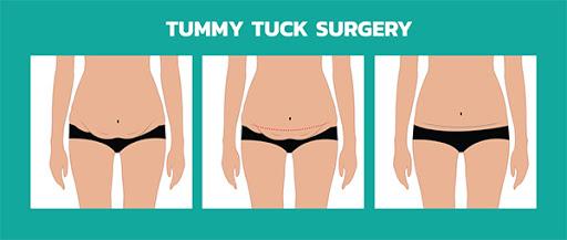 liposuction treatment in Saidabad     , liposuction treatment in Saidabad