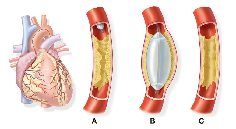 BALLOON ANGIOPLASTY treatment in hyderabad
