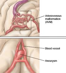 Arteriovenous Malformation Repair treatment in hyderabad