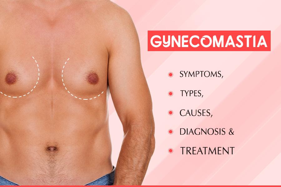 gynecomastia in Anandbagh