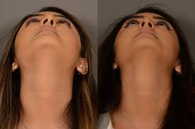 nose reshaping cost in Saroornagar
