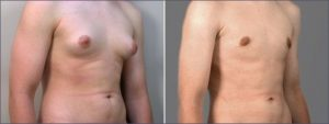 gynecomastia surgery cost in Siddipet,gynecomastia surgery cost Siddipet,gynecomastia surgery in Siddipet cost,average cost of gynecomastia surgery in Siddipet,gynecomastia surgery low cost in Siddipet,gynecomastia surgery hospitals in Siddipet,gynecomastia surgery price in Siddipet,cheapest gynecomastia surgery in Siddipet,best gynecomastia surgeon in Siddipet