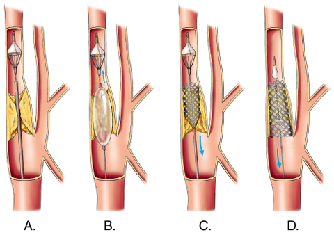 Carotid Endarterectomy in hyderabad