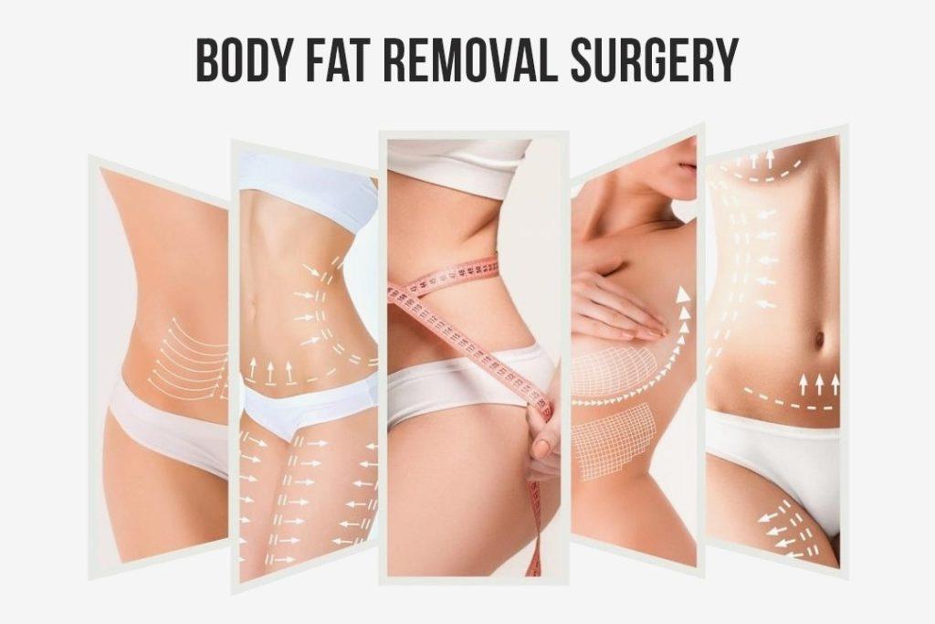 liposuction treatment cost in Saidabad      liposuction surgery cost in Saidabad