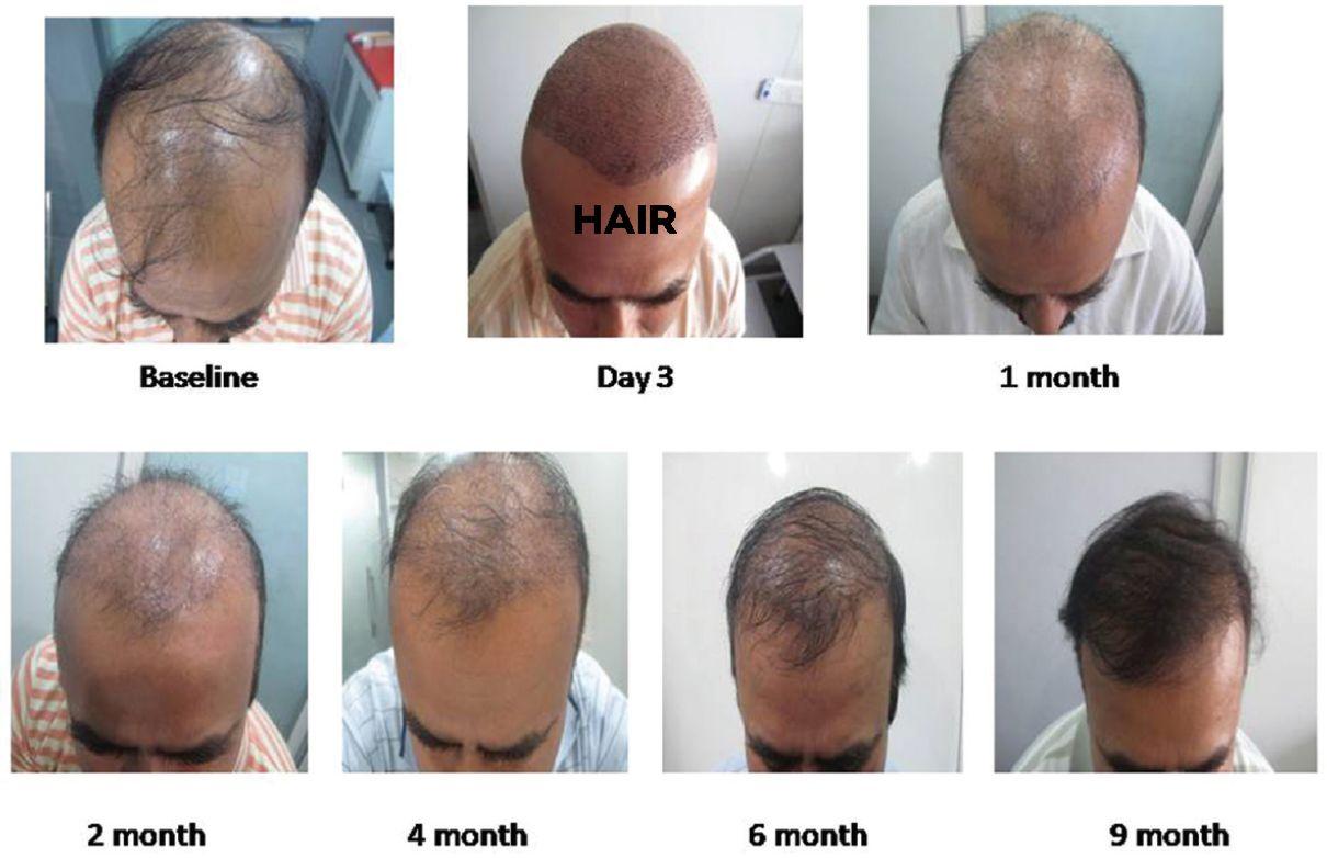 hair transplant surgery cost in Sanjeev Reddy nagar