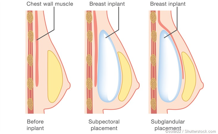 Breast Implant surgery cost in Chilakaluripet, Breast Implant treatment in Chilakaluripet