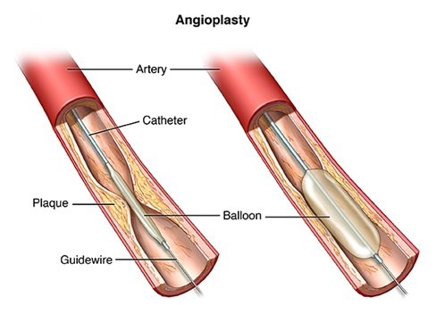 Angioplasty and stent placement hyderabad