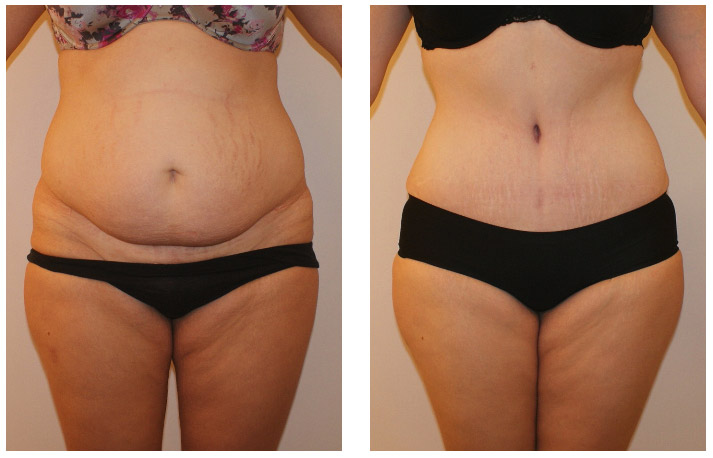 before after after liposuction Saidabad