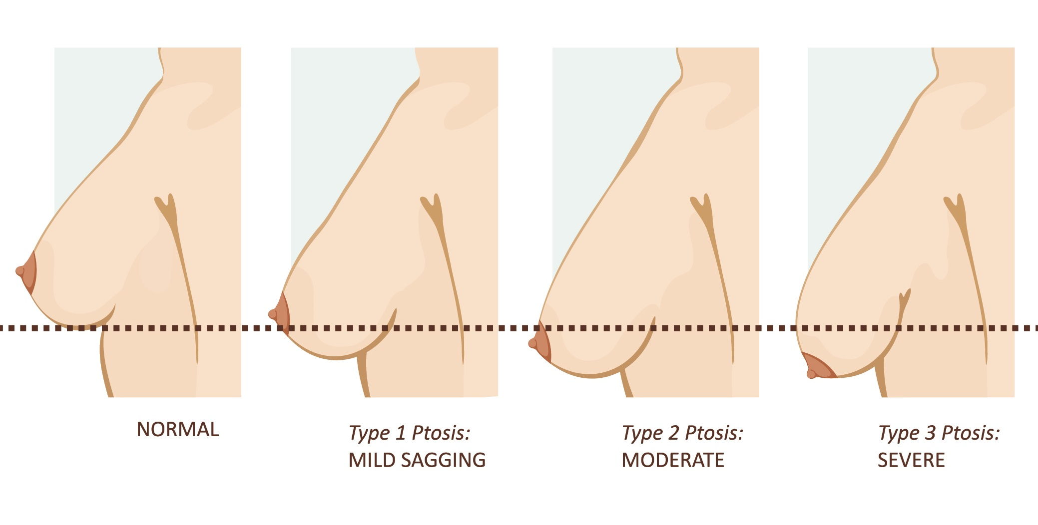 breast lifting treatment in hyderabad