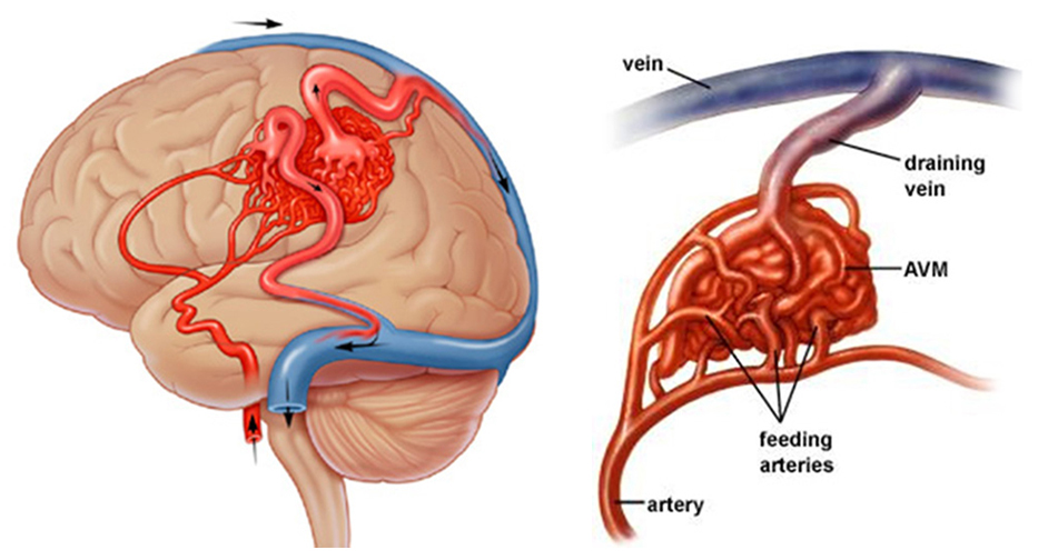 Arteriovenous malformation treatment in hyderabad