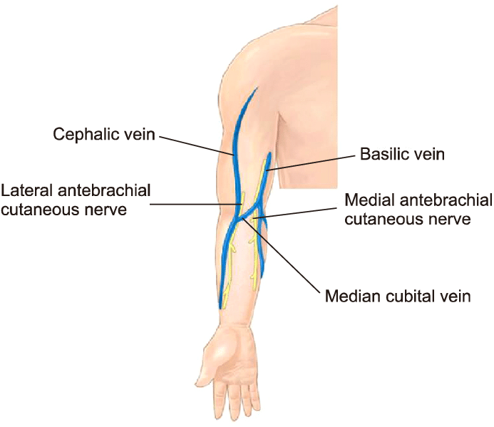 Treatment Basilic vein hyderabad