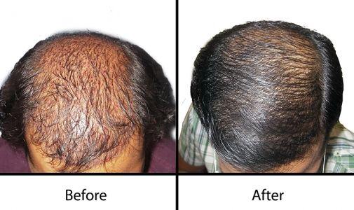 hair transplant in Sanjeev Reddy nagar