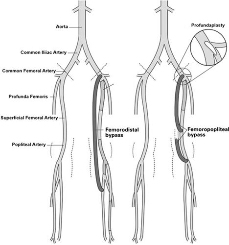 Femoropopliteal & Femorodistal Bypass treatment hyderabad